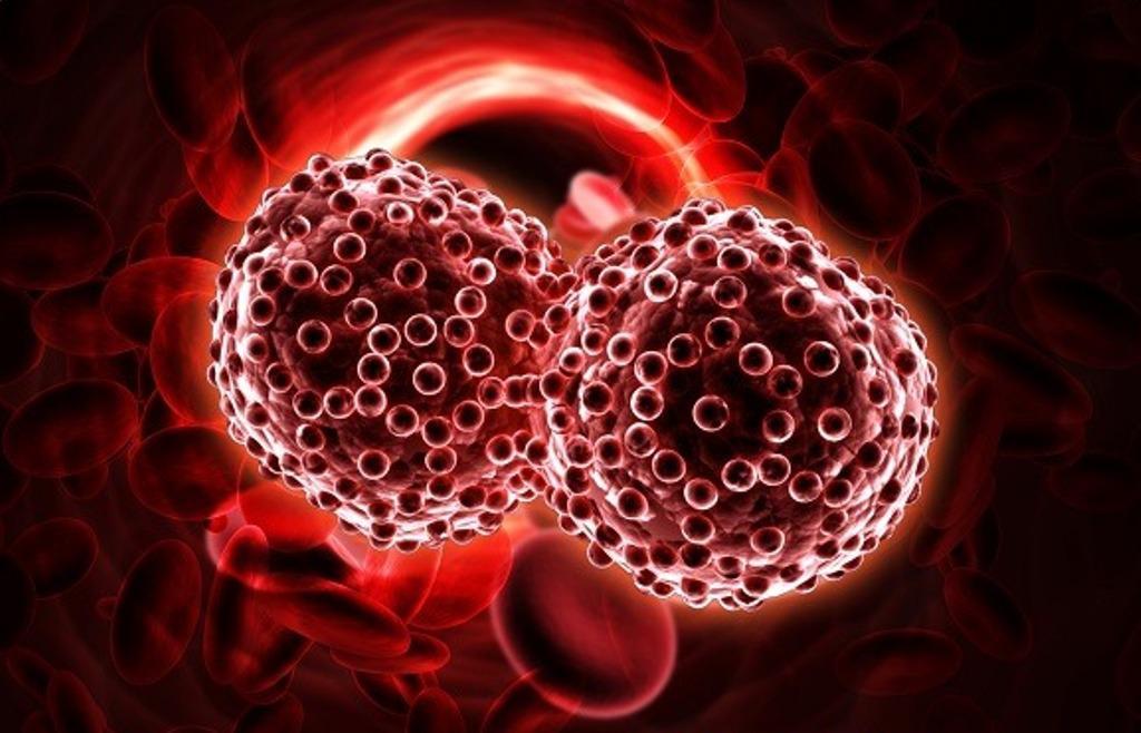 Tumori, un test del sangue universale per 8 tipi di cancro