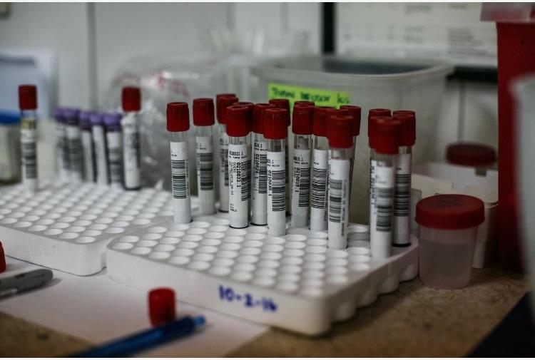Virus Zika, Brasile dichiara fine stato d'emergenza