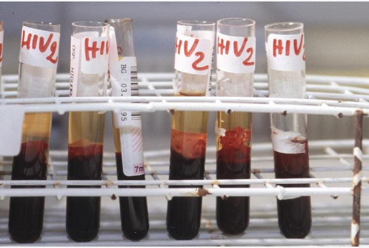 Incontri per single HIV positivi UK
