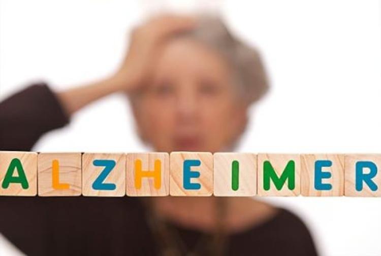 Alzheimer, farmaco ripulisce il cervello dalle placche beta-amiloidi