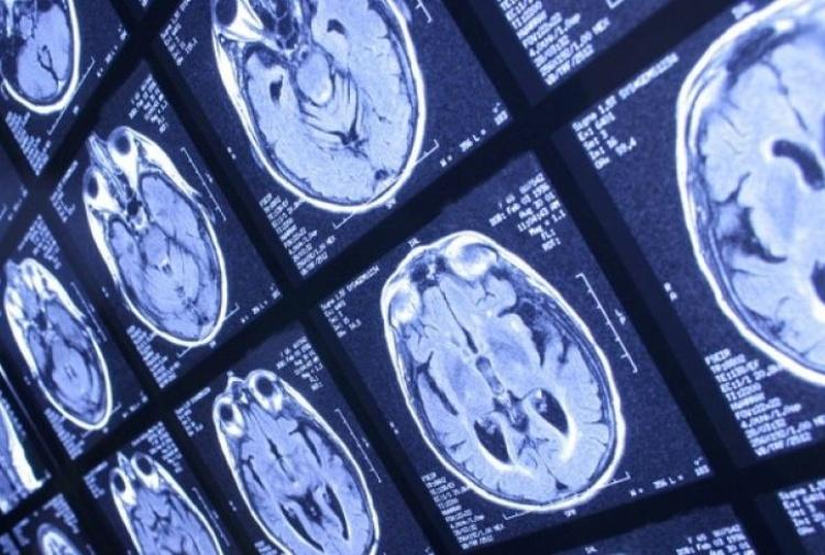 Sclerosi multipla fermata con autotrapianto cellule staminali