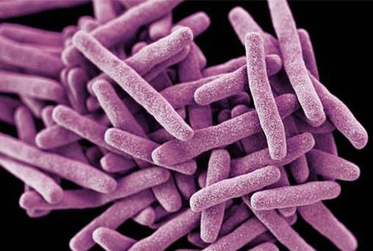 Allarme fungo: un'infezione particolarmente resistente sta dilagando